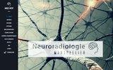 screenshot http://www.neuroradiologie.fr cas cliniques neurologie et neuroradiologie