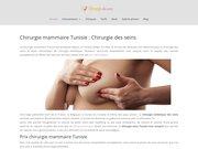 Détails : Recourir à une plastie mammaire