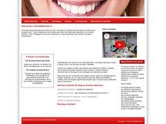 Détails : Kit complet pour blanchiment des dents