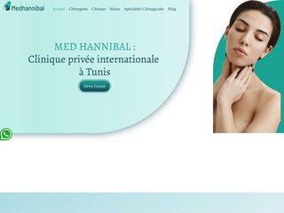 Chirurgie generale à la clinique Hannibal Tunisie